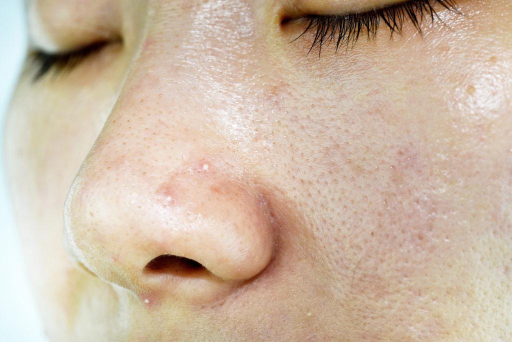 Fettige Haut glänzt und ist gekennzeichnet von großen Poren und Unreinheiten. © shutterstock.com