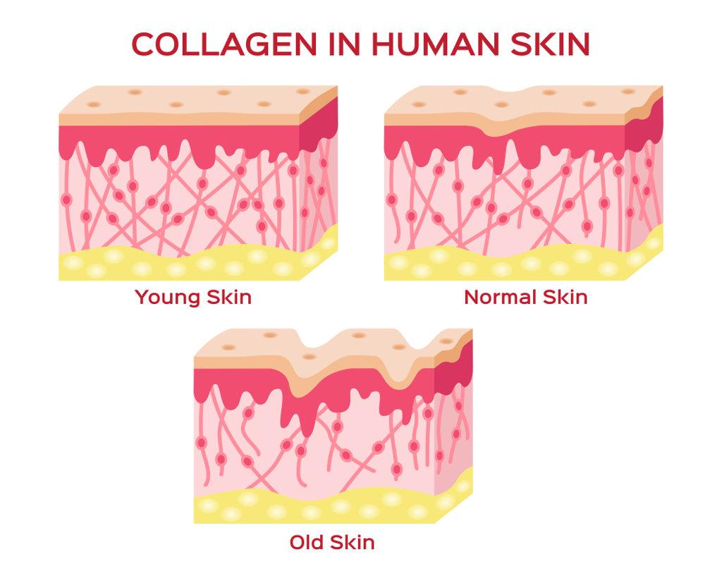 Kollagen bei junger, mittlerer und alter Haut