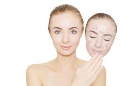 Frau mit Altersakne-Maske (c) shutterstock.com