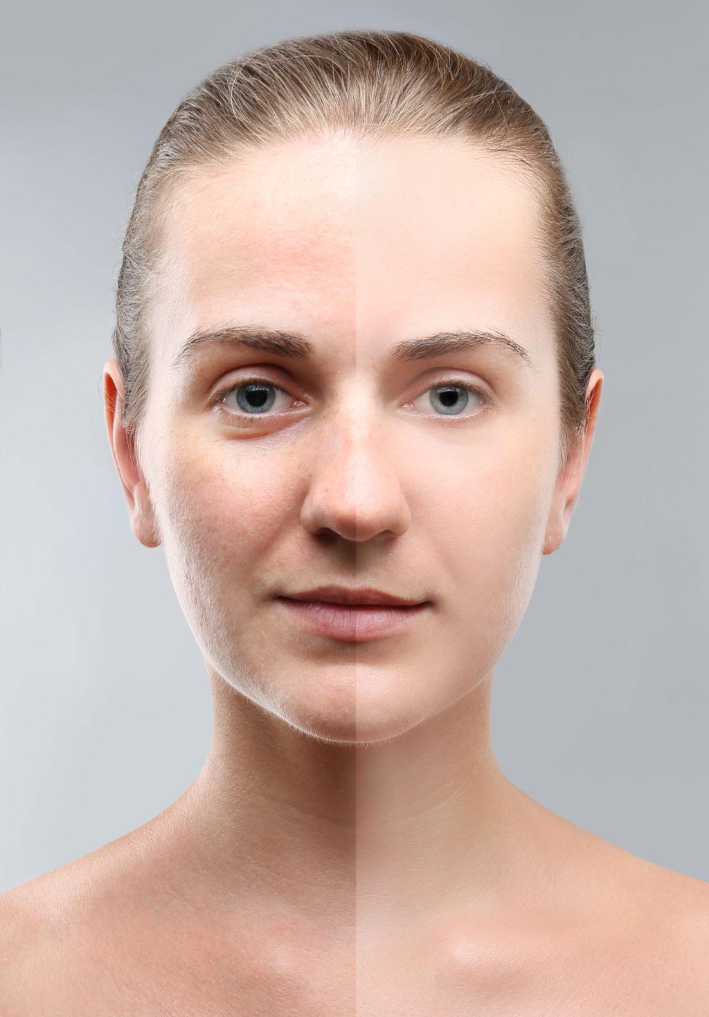 Der Wirkstoff SYN-AKE verringert Mimikfalten.