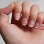 Brüchige Nägel – Ursachen und hilfreiche Tipps