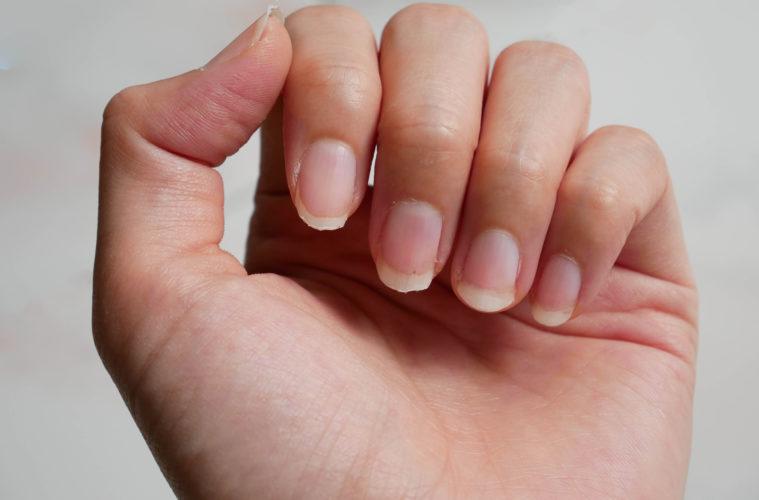 So können brüchige Nägel aussehen ©shutterstock