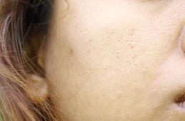 Hausmittel gegen große Poren. (c) shutterstock.com