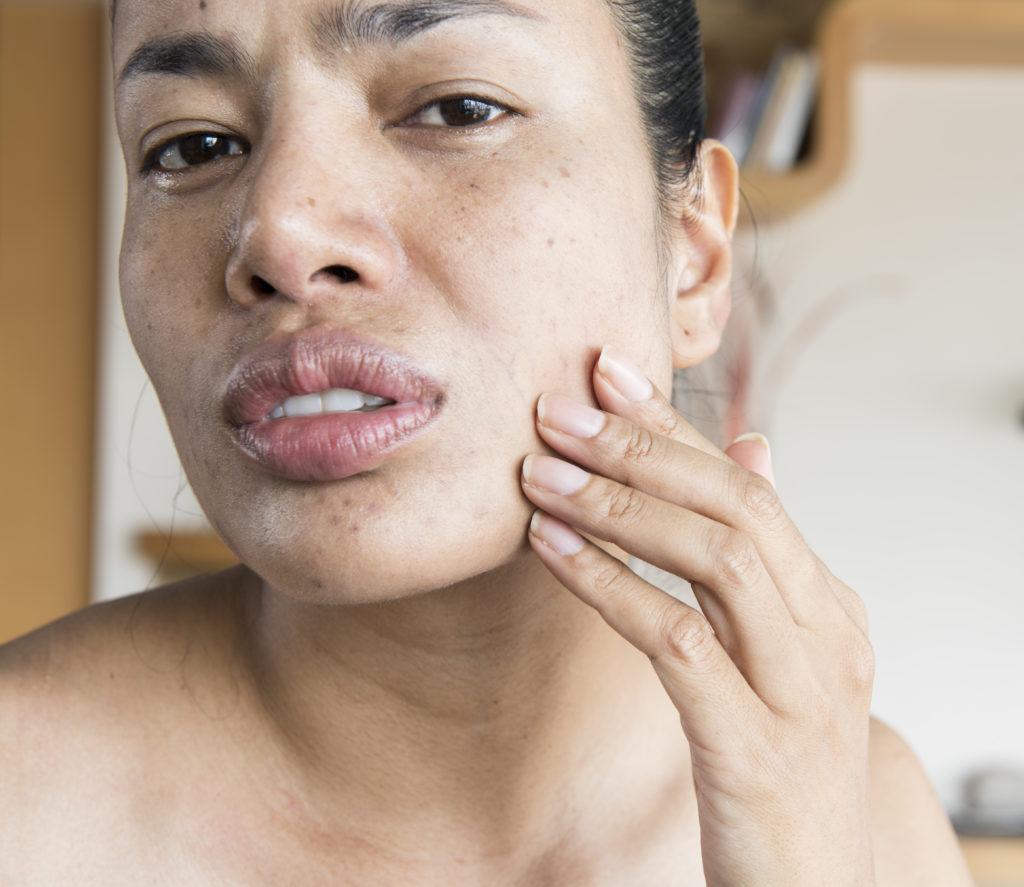 Trockene Haut spannt und juckt unangenehm. © shutterstock.com